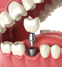3d illustration Tooth human implant